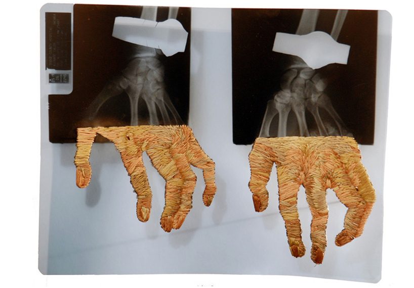 Embroidered X-Rays by Matthew Cox: embroidered_x-rays_1_20111018_2006427337.jpg