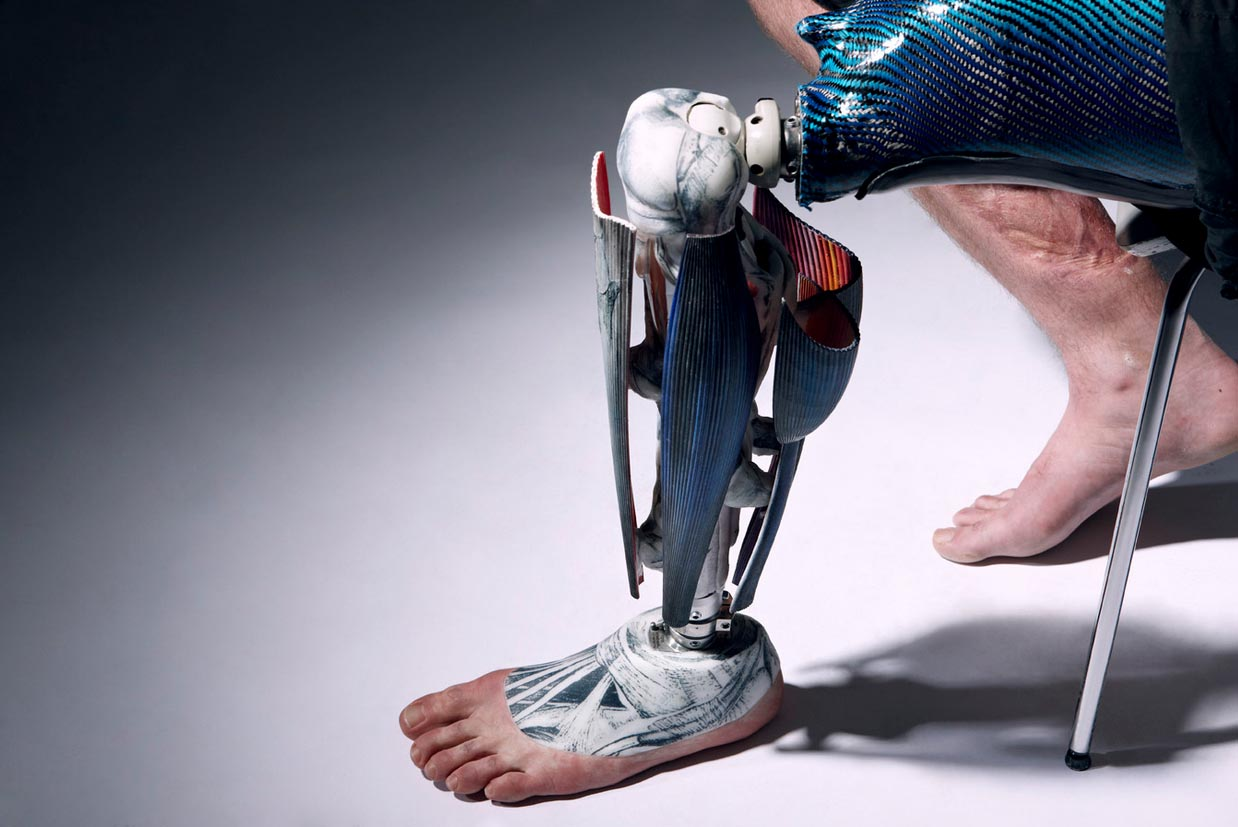 Fashionable Prosthetics from The Alternative Limb Project: Screen shot 2013-04-11 at 10.53.32 PM.jpg