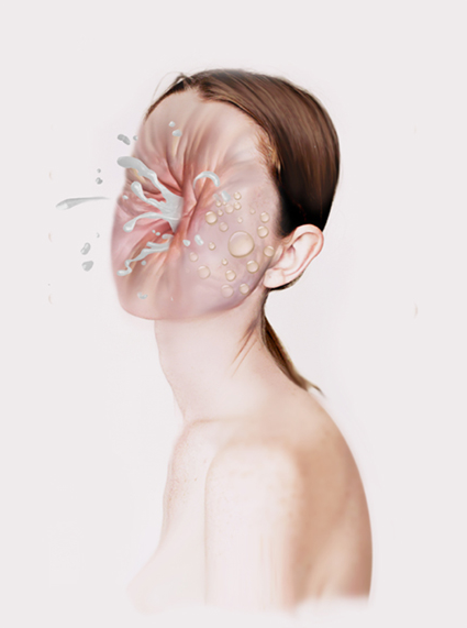 Imploding Faces and Exploding Deer: Juxtapozmervemork001.png