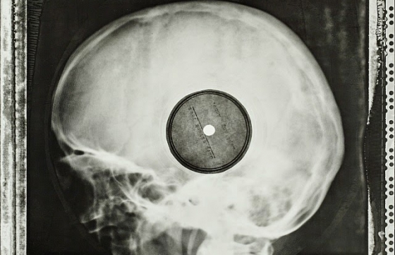Soviet-Era Banned Western Music Pressed onto X-Rays